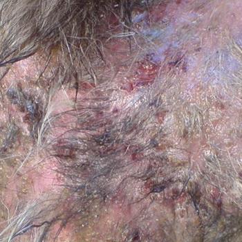 Фото Кожные Заболевания У Собак: http://tominecraft.ru/foto-kozhnye-zabolevaniya-u-sobak.html